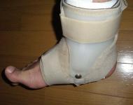 三角靱帯損傷